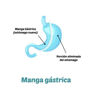 Manga Gástrica, Cirugía Bariátrica