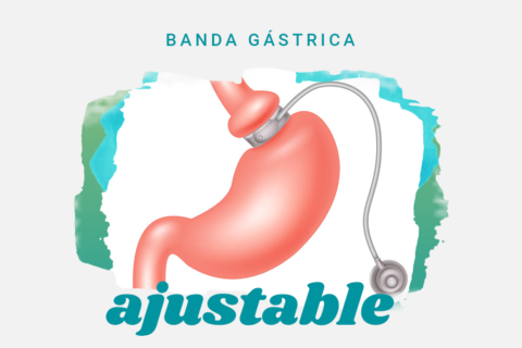 BANDA GÁSTRICA AJUSTABLE